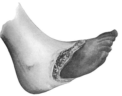 Senile Gangrene Of The Foot Showing Line Demarcation